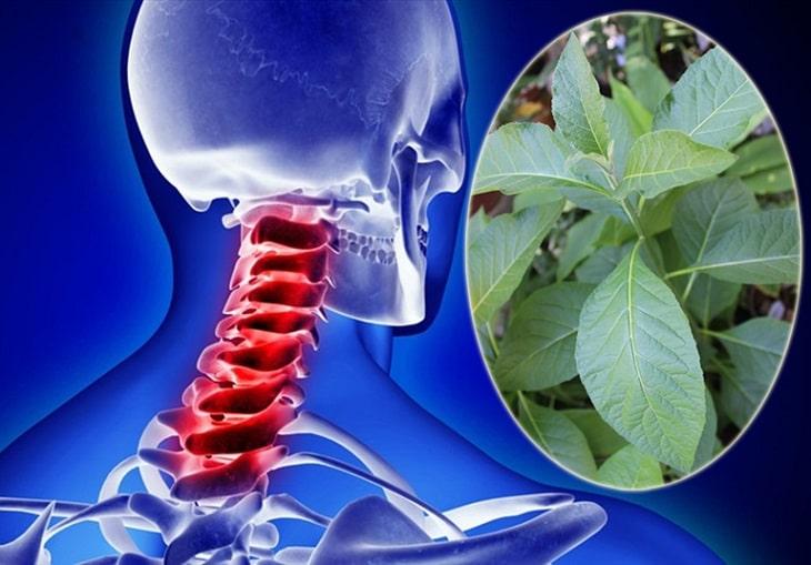 Sử dụng thuốc Đông y trong điều trị thoát vị đĩa đệm cổ