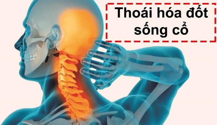 Một trong những nguyên nhân gây bệnh thoát vị đĩa đệm cổ là thoái hóa xương khớp