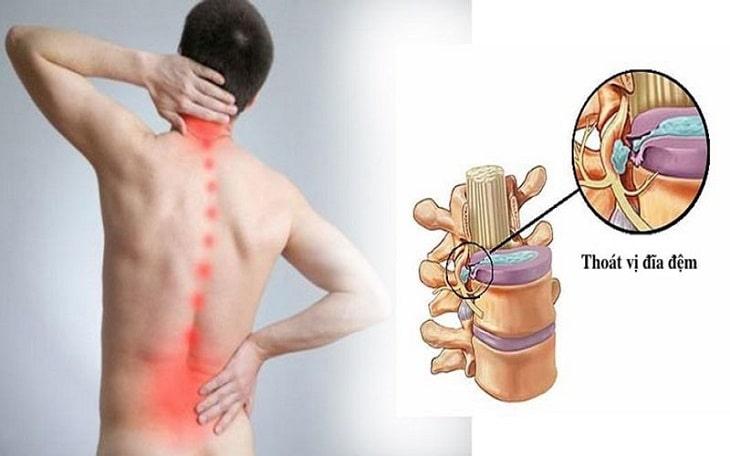 Thoát vị đĩa đệm đau như thế nào? Cơn đau mạnh mẽ dữ dội