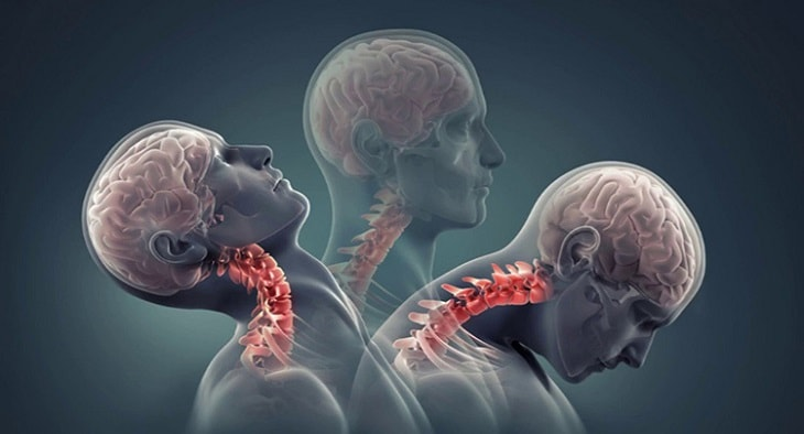 Rất khó để quay sang hai bên hoặc vặn vẹo cổ là triệu chứng điển hình