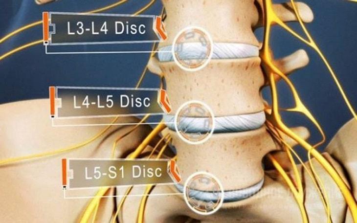 Thoát vị đĩa đệm L5 S1 là tình trạng bệnh lý phổ biến