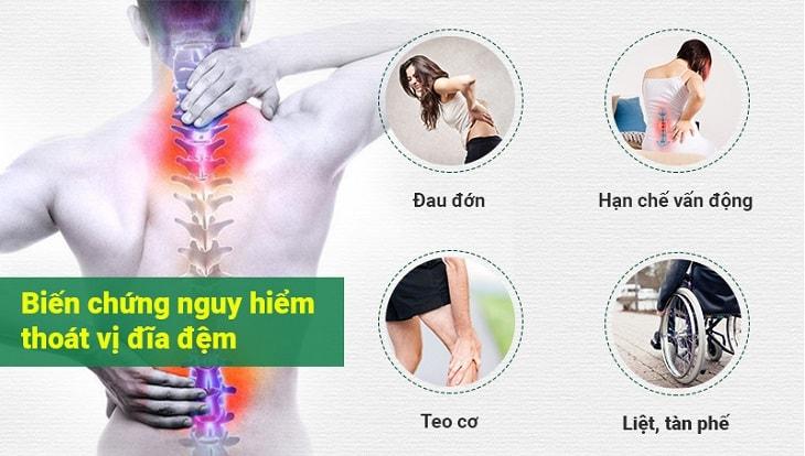 Thoát vị đĩa đệm cột sống thắt lưng L5 S1 gây nhiều nguy hiểm cho người bệnh