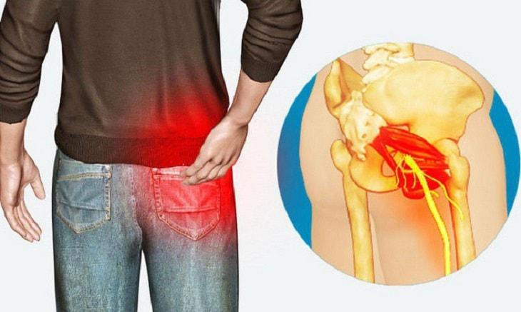 Thoát vị đĩa đệm ở mông là tình trạng phổ biến thường gặp ở nhiều người