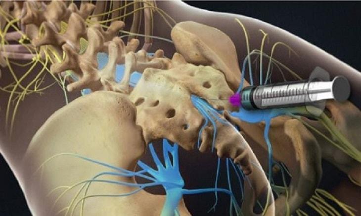 Quy trình tiêm ngoài màng cứng chữa thoát vị đĩa đệm