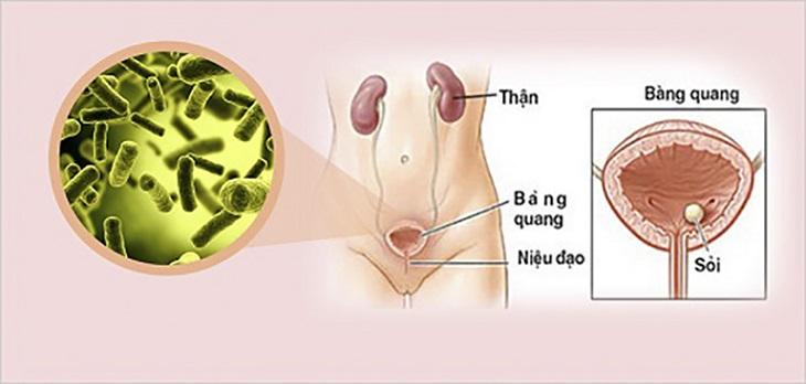 Khi gặp các triệu chứng như tiểu đêm nhiều lần, đau rát vùng sinh dục, đi tiểu xót... nên đi khám bác sĩ