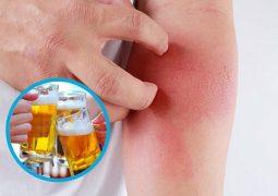 Uống rượu bị nổi mề đay là do cơ thể dị ứng với các thành phần trong đó