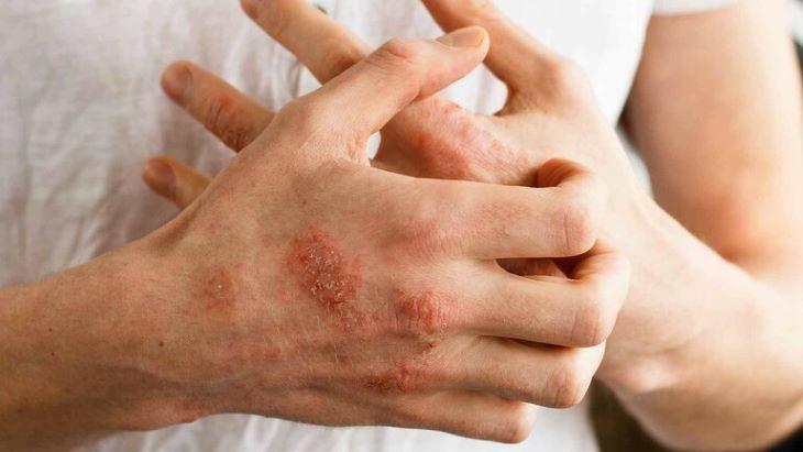 Tay là một trong những vị trí dễ bị bệnh với triệu chứng ngứa, phồng rát, khô da