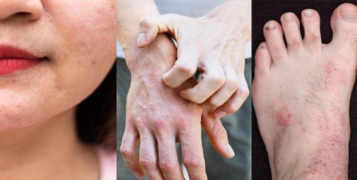 Bệnh xảy ra ở người lớn thường có mức độ dai dẳng và tái phát nhiều lần hơn trẻ nhỏ