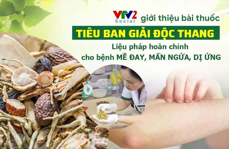 VTV2 giới thiệu bài thuốc đặc trị mề đay Tiêu ban Giải độc thang