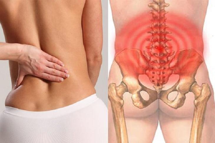 Bài thuốc từ dược liệu chữa đau lưng hiệu quả
