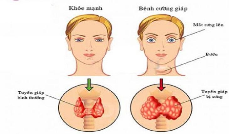 Một số triệu chứng điển hình của bệnh cường giáp