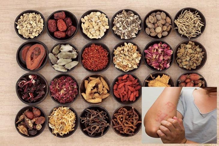 Phương pháp chữa viêm da cơ địa bằng Đông y ngày càng được ưa chuộng