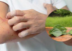 Chữa viêm da cơ địa bằng lá trầu không ít gây hại cho sức khỏe hơn thuốc Tây
