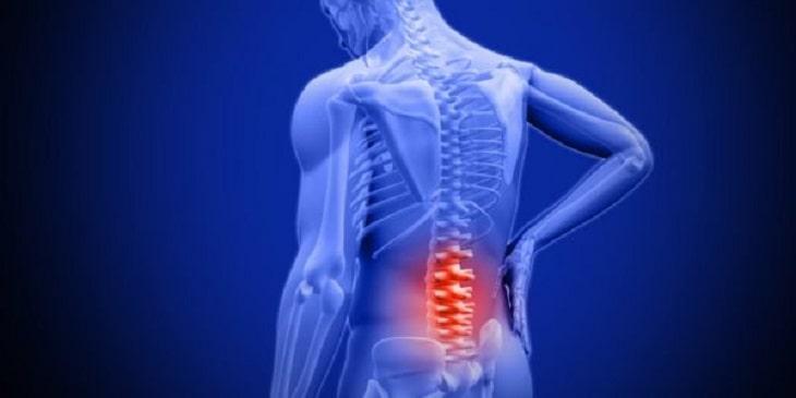 Đối tượng có cơn đau nhẹ đến trung bình nên dùng đai lưng