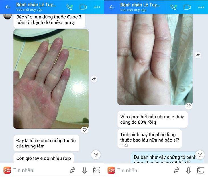 Chị Lê Tuyết Trinh đã khỏi 80% viêm da cơ địa sau 2 tháng sử dụng Thanh bì Dưỡng can thang