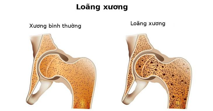 Sự khác biệt của xương của người bình thường so với người bị loãng xương