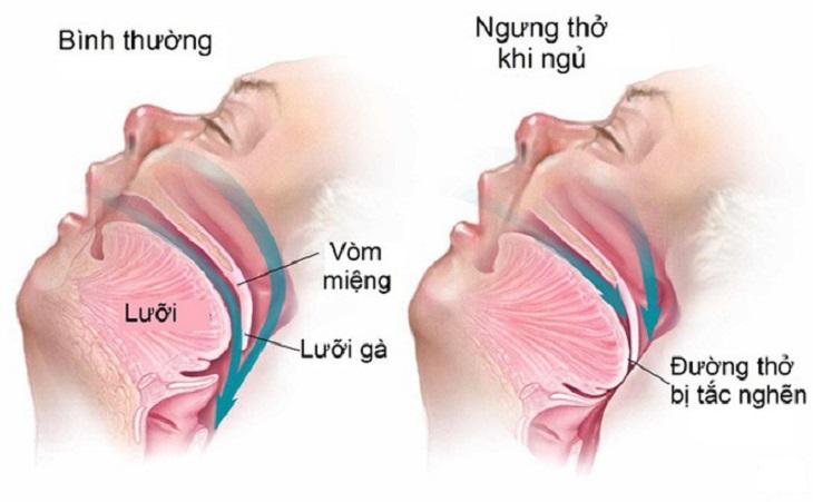 Khi ngủ bị nhưng thở là bệnh lý nguy hiểm liên quan đến hô hấp
