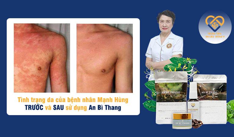 Bệnh nhân Mạnh Hùng (Nghĩa Lộ, Yên Bái) đã điều trị khỏi viêm da cơ địa sau 1 liệu trình