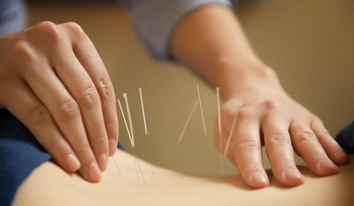 Châm cứu hiện là một trong ba phương pháp trị liệu Đông y điển hình