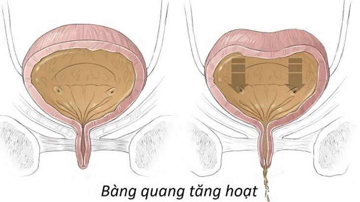 Bàng quang tăng hoạt gây đau rát, khó chịu, đi tiểu nhiều hơn