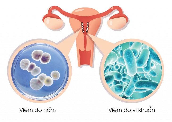 Các bệnh viêm nhiễm phụ khoa ở nữ