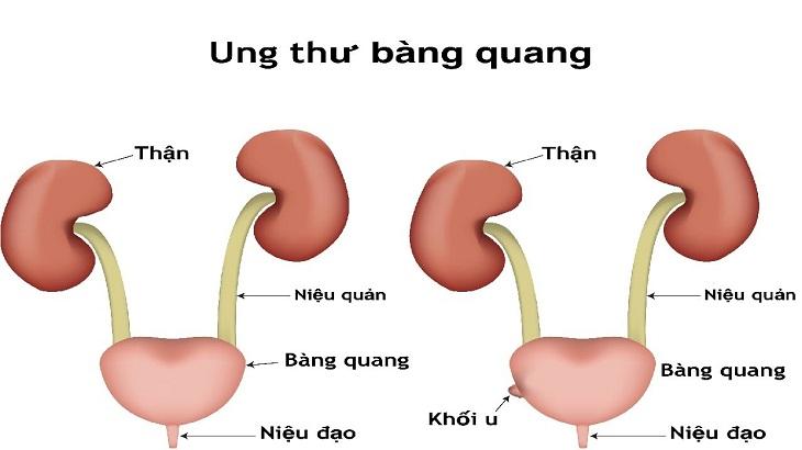 Tiểu rắt đau bụng dưới là dấu hiệu của nhiều bệnh lý khó lường
