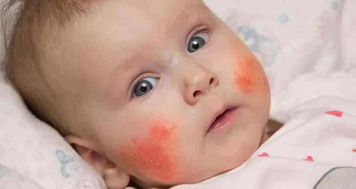 Trẻ bị viêm da cơ địa kiêng ăn gì để chóng khỏi bệnh?