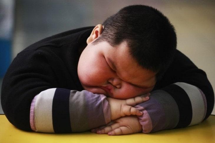 Thừa cân béo phì cũng có thể là nguyên nhân gây bệnh thoát vị ở trẻ