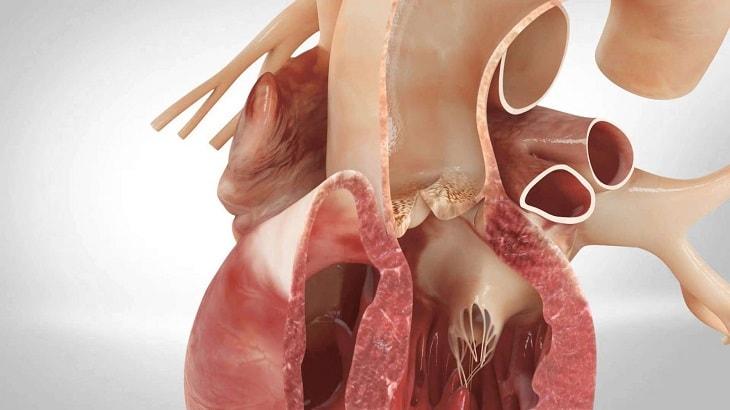Bệnh lý tim mạch là nguyên nhân thường thấy của tình trạng tức ngực khó thở