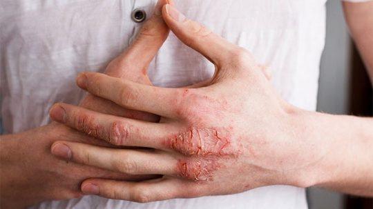 Bệnh lý này nguy hiểm như thế nào và có lây không?
