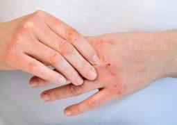 Giải đáp thắc mắc viêm da cơ địa có lây không cùng chuyên da