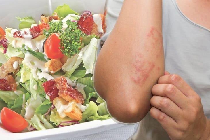 Người bị viêm da cơ địa cần chú trọng về chế độ dinh dưỡng để bệnh hồi phục nhanh