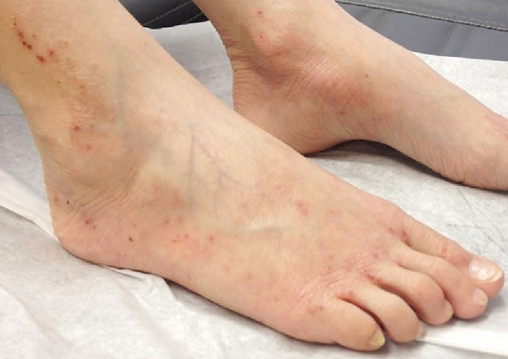 Chân của người bị viêm da cơ địa sẽ xuất hiện mụn nước
