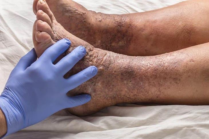 Viêm da cơ địa không nguy hiểm đến tính mạng nhưng có thể gây biến chứng