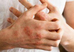Viêm da cơ địa ở tay là bệnh gì và triệu chứng thường gặp