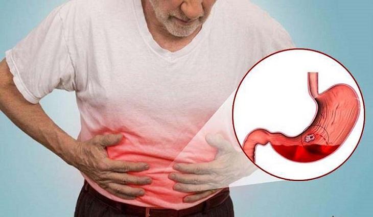 Những cơn đau, buồn nôn, trướng bụng... là dấu hiệu cảnh báo bệnh rõ ràng nhất