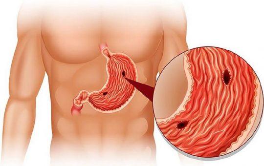 Viêm dạ dày ruột cấp (đau dạ dày cấp) là gì?