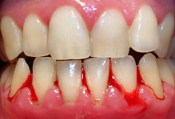 Chảy máu chân răng là triệu chứng có thể gặp khi viêm khớp răng