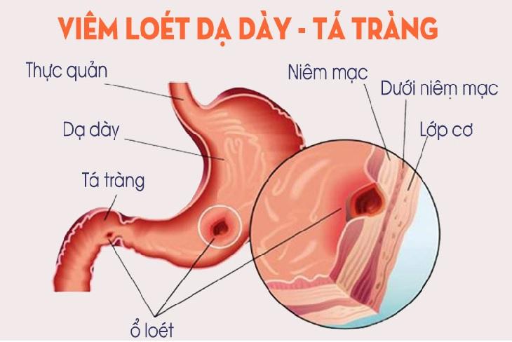 Loét dạ dày tá tràng là hiện tượng niêm mạc dạ dày bị tổn thương tạo thành vết loét