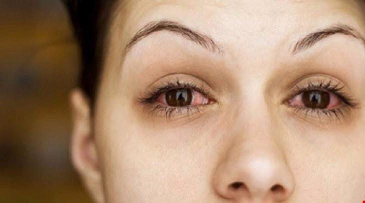 Viêm màng bồ đào mắt là bệnh lý nhiều người mắc phải