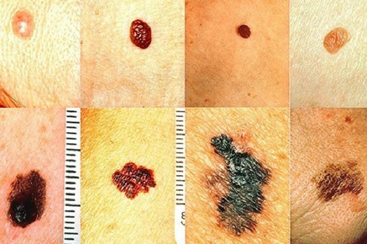 Các nốt trên da xuất hiện với nhiều màu sắc khắc sau là dấu hiệu cảnh báo ung thư da