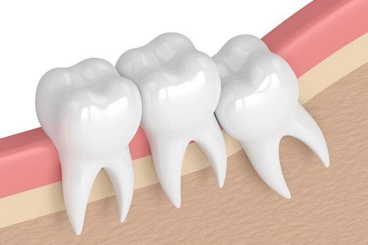 Răng khôn mọc lệch là nguyên nhân gây ra sự đau đơn của khá nhiều người