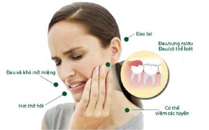 Một số tác hại của việc răng khôn mọc lệch