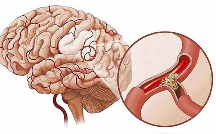 Não bị thiếu dưỡng chất và oxy gây đau đầu, buồn nôn, khó ngủ…