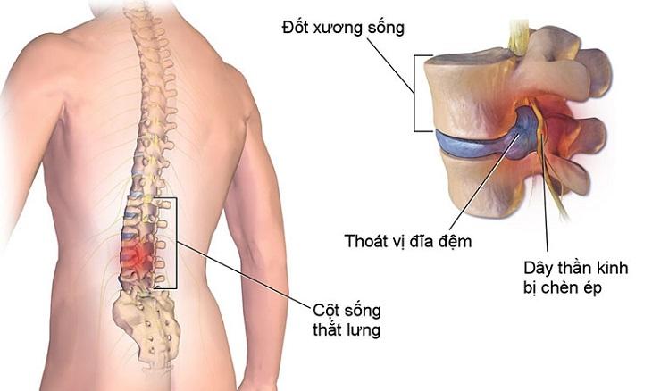 Thoái hóa cột sống chèn dây thần kinh là biểu hiện rất phổ biến của bệnh lý này