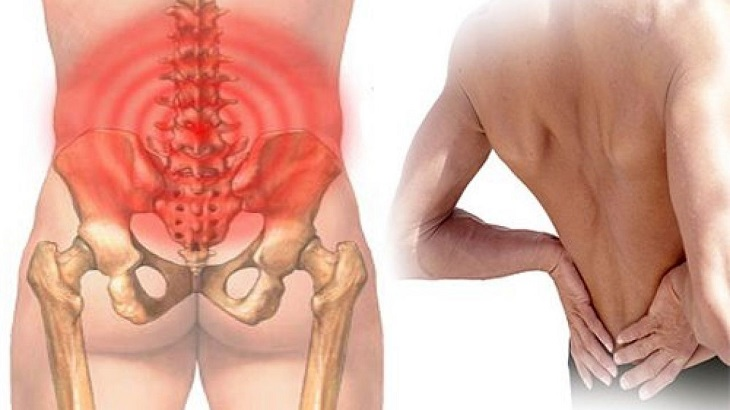 Khi chèn ép dây thần kinh ở vùng lưng, người bệnh có thể bị đau thắt lưng nghiêm trọng