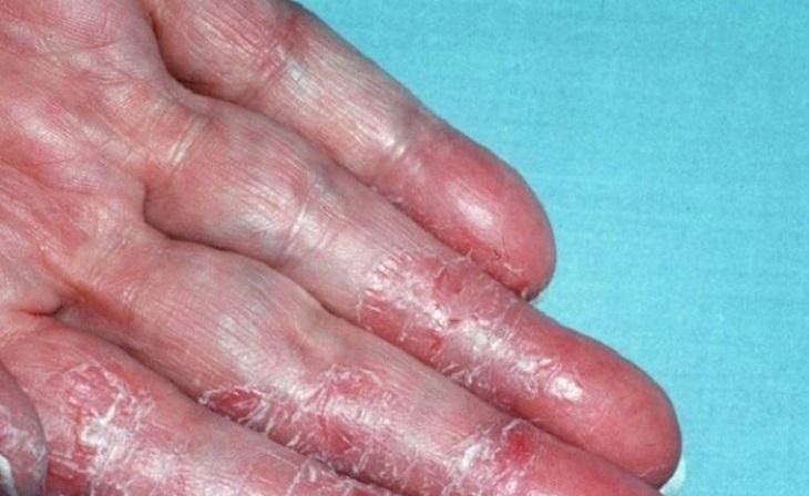 Á sừng liên cầu da tay gây khó khăn cho người bệnh khi sinh hoạt