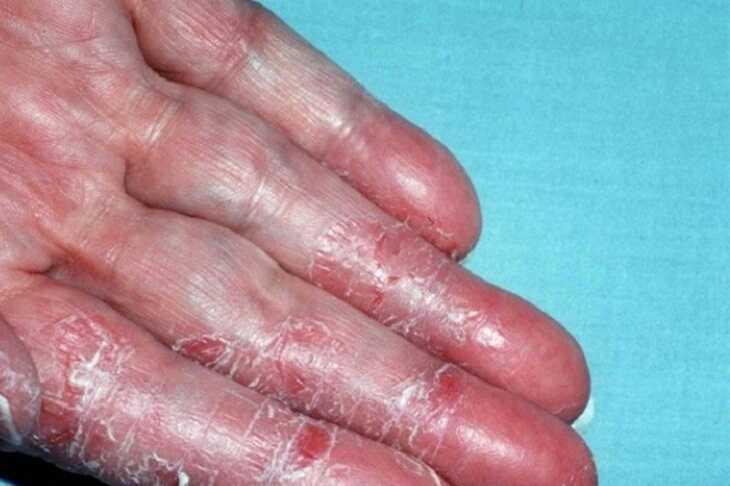 Triệu chứng bệnh thường xuất hiện ở đầu ngón tay