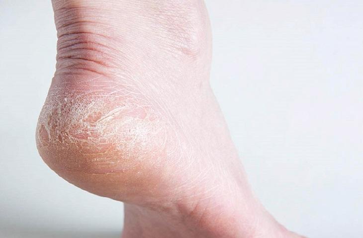 Da khô bong tróc là những biểu hiện điển hình của bệnh á sừng