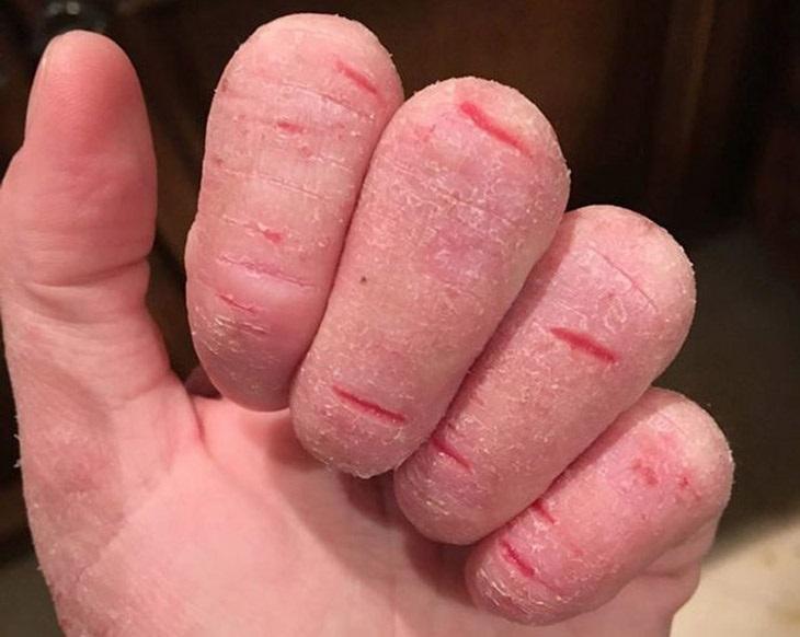 Da nứt nẻ, bong tróc là triệu chứng thường gặp khi bị á sừng